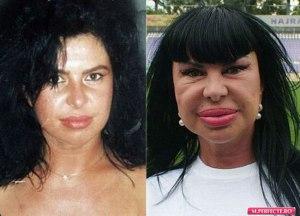 ea-este-femeia-cu-cele-mai-mari-buze-din-europa-cum-au-reusit-operatiile-estetice-sa-o-desfigureze_1_size1