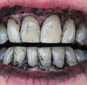 carbune-dinti
